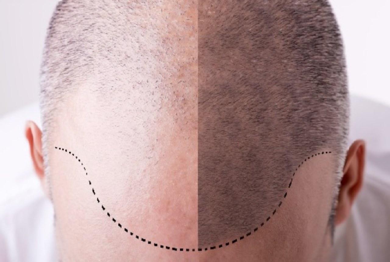 Nascondere la calvizie con la tricopigmentazione: pro e contro